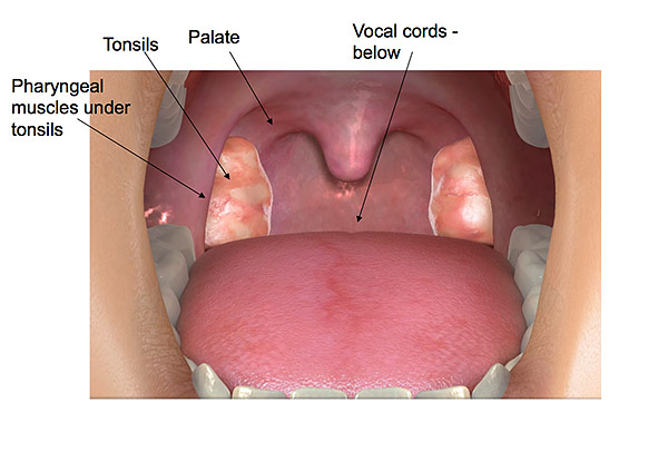 Tonsillectomy adult risk