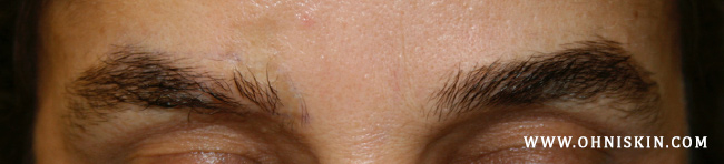 Figure 3a: Scar leading to hair loss of the right eyebrow.