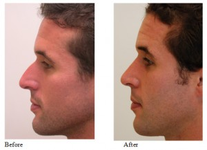 Rhinoplasty Tips: Male Rhinoplasty