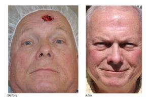 Facial Plastic Surgery & Mohs Surgery