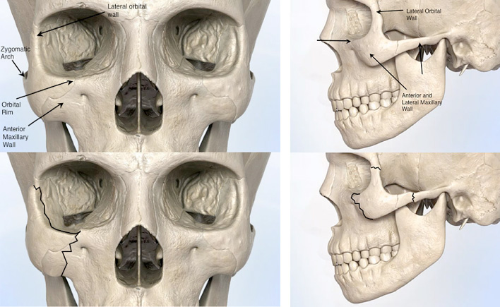 Figure 1: Schematic of structures comprising the cheekbone area (top). Areas commonly fractured during a cheekbone fracture (bottom).