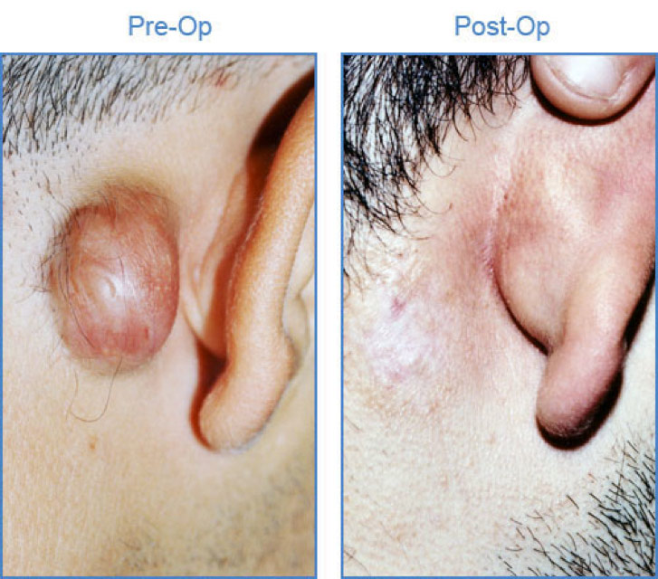 Figure 1. Keloid lesion behind the right ear before and after cryotherapy treatment. Notice regression of the keloid after one treatment. (Courtesy of Drs. Yaron Har-Shai, Z.Paul Lorenc, cyroshape.com)