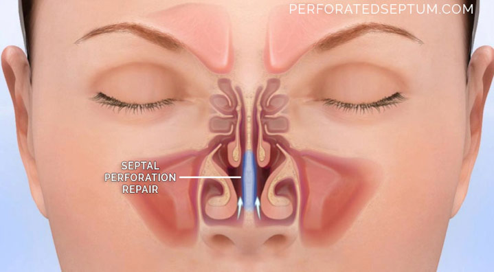Figure 5. Septal perforation repair showing restoration of normal airflow. It is important to seek treatment before the perforation gets so large as to cause a saddle nose. Treatment is complex and should be done only by a surgeon with extensive experience in nasal reconstruction.