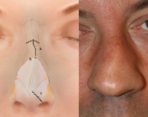 Figure 2: Nasal fractures can typically include damage to or displacement of the nasal septum.