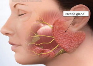 The Effect of Bulimia on the Parotid Gland