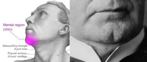 Chin Implants on the Rise